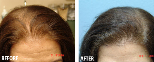 Female Hair Loss Roseville Hair Thinning For Women Sacramento