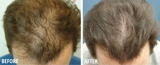 Hair Loss Before and After Photos, Sacramento, CA